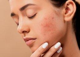 Łagodzenie objawów atopowego zapalenia skóry dzięki NanoCollagenowi